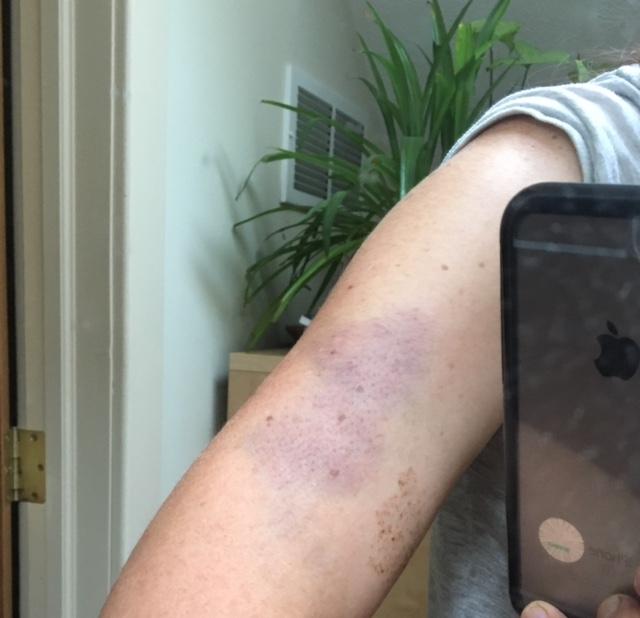 bruise from the lovers door
